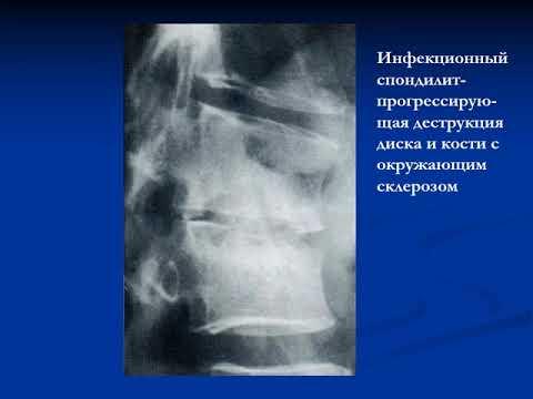 лекция №2 лучевая диагностика заболеваний костной системы