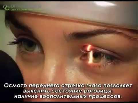 Коррекция зрения лазером самара отзывы