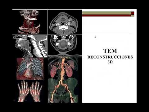 Cum să determinați că există o predispoziție la varicoză