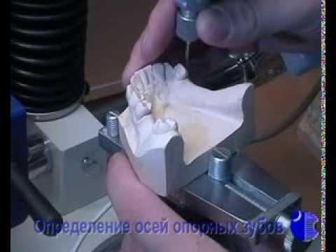 Этапы изгтовления бюгельных протезов (часть 1)