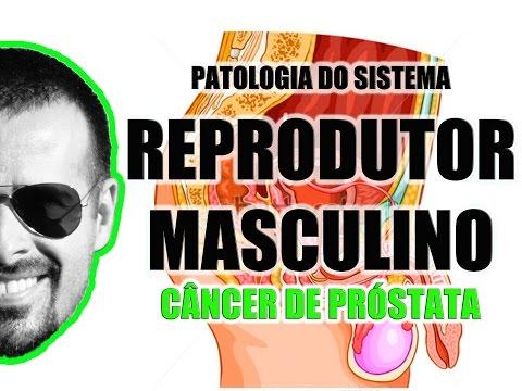 Tratamento de prostatite álcool tintura Podmore