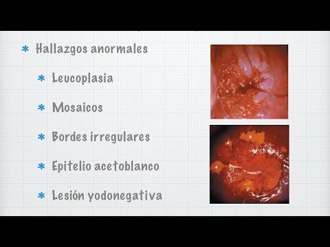 Hpv cancer lesions