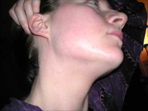 Wybielanie skóry maska z drożdży