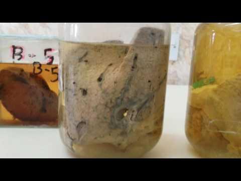 Programa ng hugas ng katawan mula sa parasites
