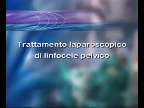 Osteocondrosi cervicale 18