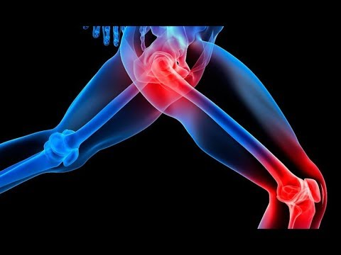 Rückenschmerzen gibt an einem Bein