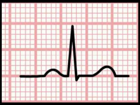 Si le taux de cholestérol affecte la pression sanguine