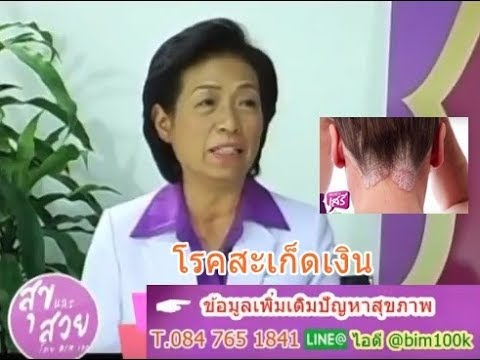 Enterosgel จาก neurodermatitis