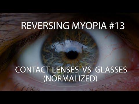 Secția de oftalmologie pentru copii gnokb