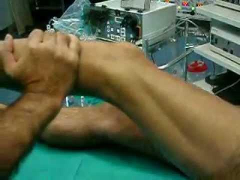 Osteocondrosi cervicale con le foto