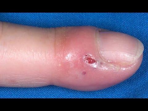 Halamang-singaw kuko sa paa stage sintomas