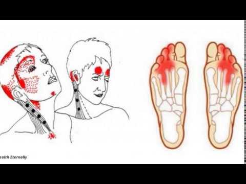 Синдром надпеченочной желтухе