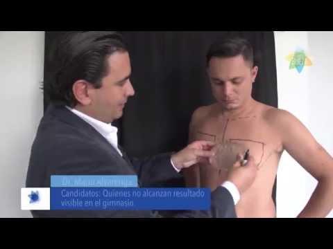 Como de pecho implant baja