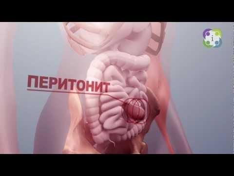 МЕД-инфо. Грыжа: причины, симптомы и скрытые опасности