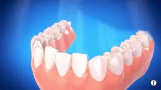 Video  تقويم الأسنان الشفاف