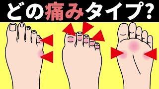 【外反母趾】ヒール靴が足にかける負担と対策