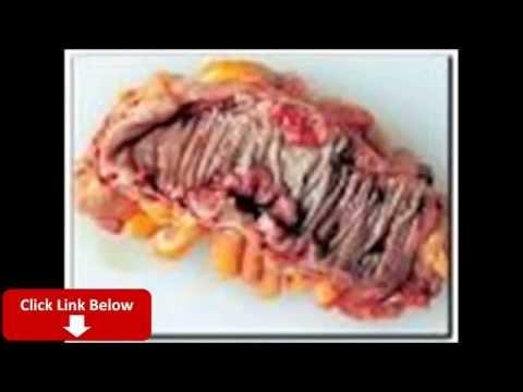 Video cara mengobati penyakit infeksi usus