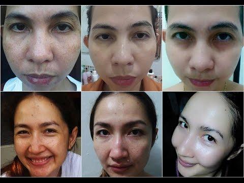 Propesyonal na mga pampaganda ng pigment spots