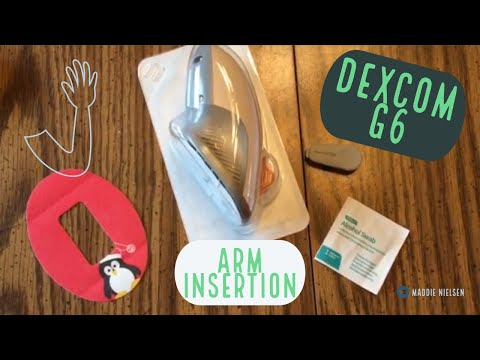 Dexcom G6 - Inserting the Sensor and Attaching the