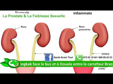 Les effets secondaires du traitement du cancer de la prostate