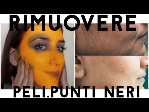 Decolorazione di pelle a pigmentazione