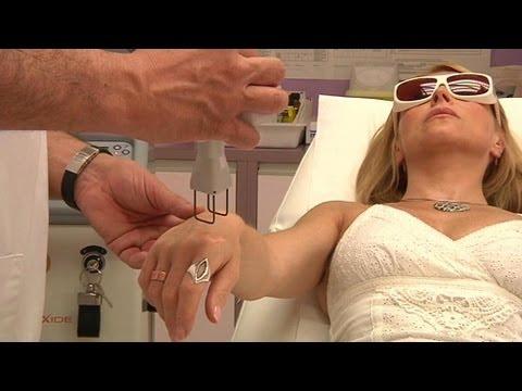 Les symptômes de la varicosité dans le domaine inguinal