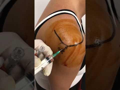 Micoplasma dureri articulare