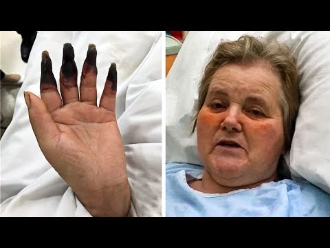 After Cleaning Her House for 2-Hours Straight - She Notices Her Fingers Turning Black