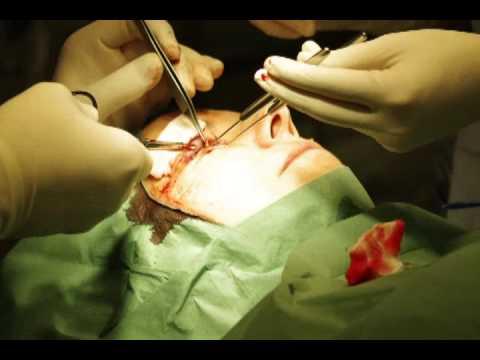 Hemoroidy operacja laserowa w Charkowie