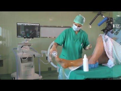 Suole interne ortopediche per donne allatto di deformazione valgusny
