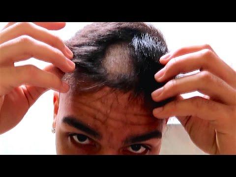 Kydra die Wiederherstellung des Haares