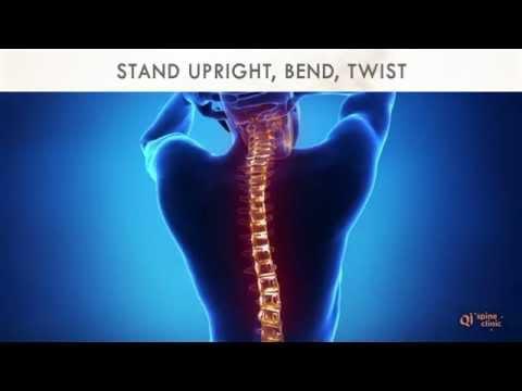 Physiokinesis von Rückenschmerzen