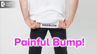 Painful bump on buttocks. Causes, Symptoms, & Treatment - Dr. Rajdeep Mysore | Doctors' Circle