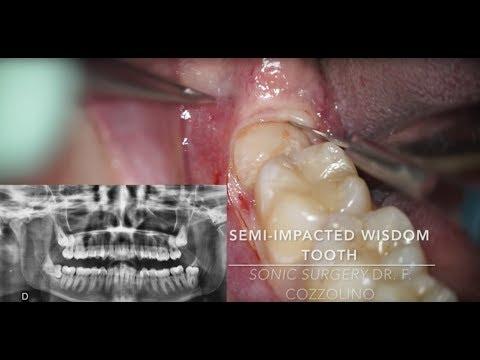 Удаление горизонтального полуретинированного зуба мудрости