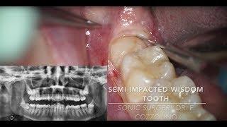 Horizontal semi-impacted wisdom tooth (sonic vs piezosurgery) - Dr. Fabio Cozzolino | Zerodonto