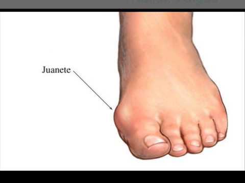 Деформация пальцев ног лечение народными средствами