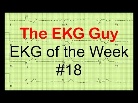 EKG of the Week #18