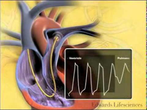 Was passiert mit roten Blutkörperchen in einer hypertonischen Lösung nacl
