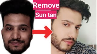 How To Remove SUN TAN from Face Naturally|Hindi|How to get rid of Sun Tan naturally|चेहरे से tan