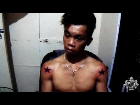Ang sanhi ng pamamaga sa ilalim ng mga mata sa umaga