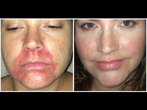 Die Schuppenflechte die Hautprobleme