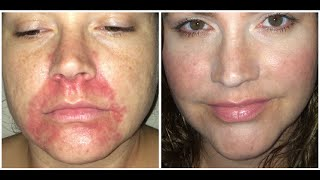 PERIORAL DERMATITIS - HOW I HEALED THIS UNSIGHTLY RASH