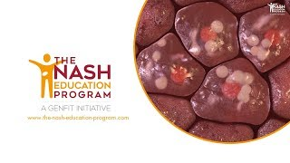 NASH liver disease progression in 3D: from healthy liver to cirrhosis
