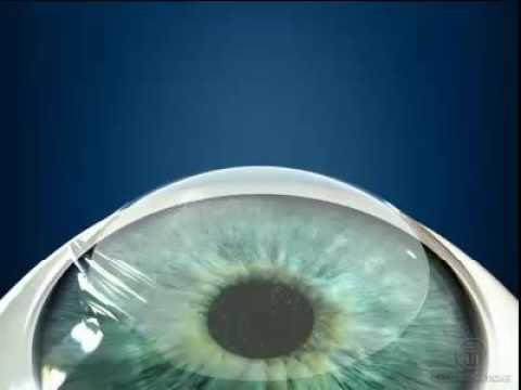Проверка глаз на дальнозоркость