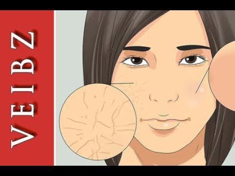 Die Pickel wegen der fettigen Gesichtshaut