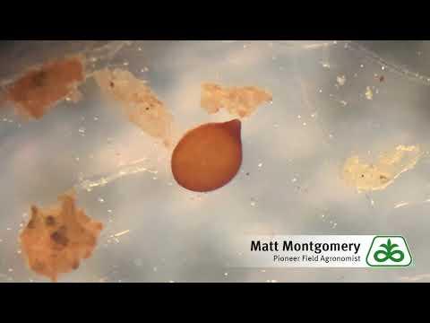 Cancer in abdominal cavity