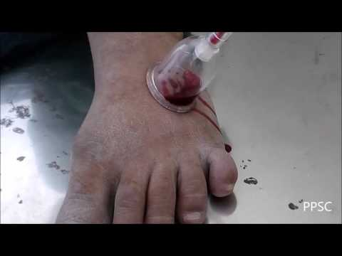 Video Quick Pain Relief in Gout by Rakta Mokshana (Ayurveda)..for more Visit: www.prashamanapainclinic.com