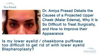 The Causes of Projected Upper Cheeks (Malar Edema) and How to Improve this Difficult Issue