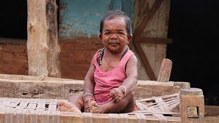 Rare Medical Condition Has Caused This 50 Yr Old Man To Stop Growing At 5 Yrs Old