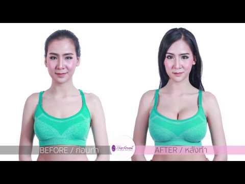 การออกกำลังกายเพื่อขยายขนาดเต้านม
